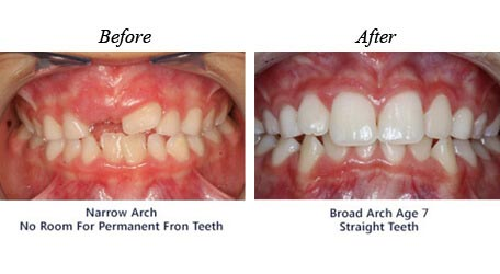 Orthodontic services,  before and after