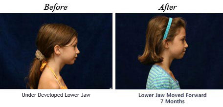 Before and after treatment for underdeveloped lower jaw
