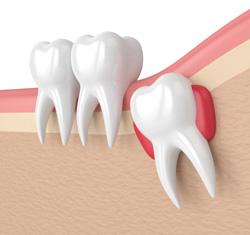 Wisdom teeth illustration