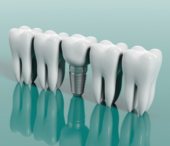 Cost and Effective Benifits of Tooth Implant in Mississauga On Area
