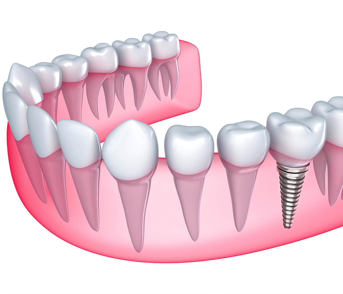 Questions To Ask a Dental Implant Dentist in Mississauga Area